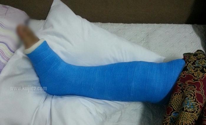 simen kaki patah